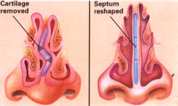 septoplasty-turbinate-reduction-surgery