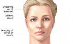 what-causes-bells-palsy
