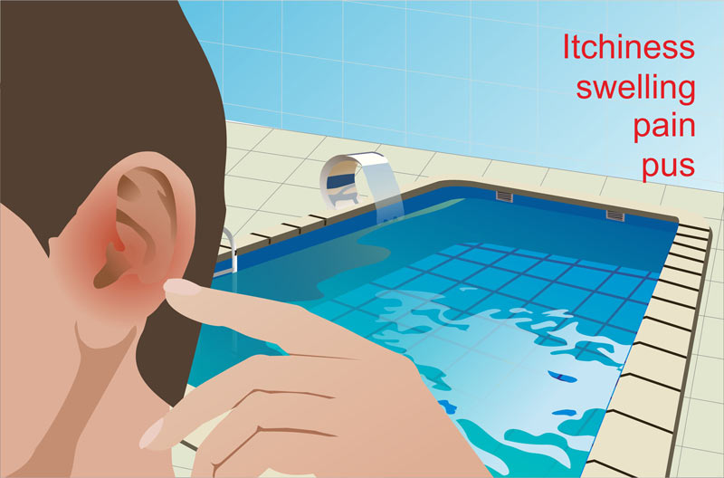 otitis-externa-swimmers-ear-infection